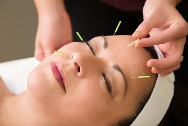 (logo) acupuncture